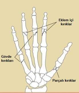 el kemikleri